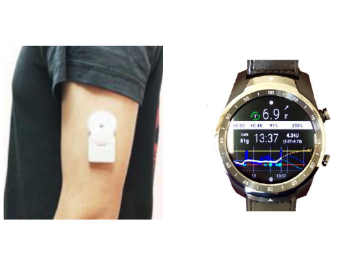 Open Artificial Pancreas Systems (OpenAPS), 2019 image